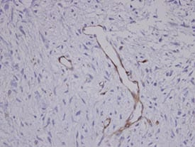Immunohistochemistry (Formalin/PFA-fixed paraffin-embedded sections) - Coronin 3 antibody (ab96266)