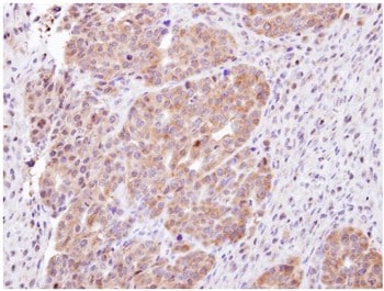 Immunohistochemistry (Formalin/PFA-fixed paraffin-embedded sections) - CHMP5 antibody (ab96273)