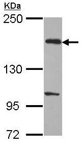 Western blot - EVC2 antibody (ab96296)