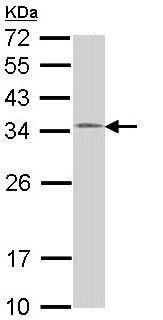 Western blot - HUS1 antibody (ab96297)