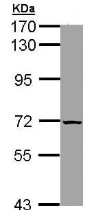 Western blot - SLC25A13 antibody (ab96303)