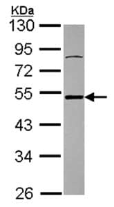 Western blot - Ataxin 3 antibody (ab96316)