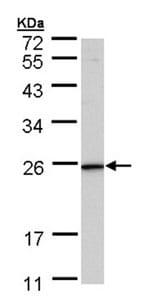 Western blot - KLRG1 antibody (ab96317)