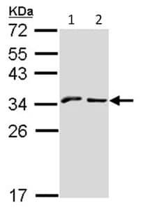 Western blot - NKG2A antibody (ab96319)