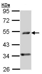 Western blot - PDSS2 antibody (ab96324)