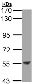 Western blot - ENTPD3 antibody (ab96335)