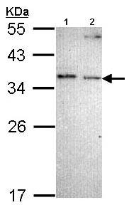 Western blot - NOSIP antibody (ab96337)
