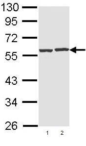 Western blot - CAP1 antibody (ab96354)