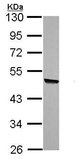 Western blot - L-Kynurenine Hydrolase antibody (ab96365)