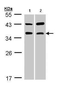 Western blot - Tartrate Resistant Acid Phosphatase antibody (ab96372)