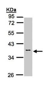 Western blot - Calsequestrin 2 antibody (ab96387)