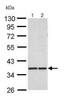 Western blot - AKR1B10 antibody (ab96417)