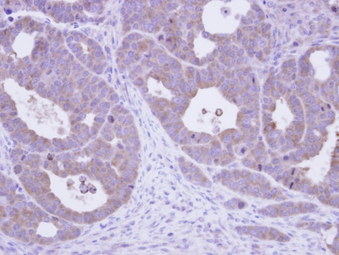 Immunohistochemistry (Formalin/PFA-fixed paraffin-embedded sections) - TCP1 epsilon antibody (ab96445)