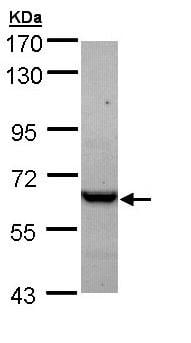 Western blot - TCP1 epsilon antibody (ab96445)