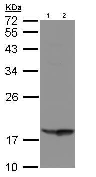 Western blot - RARRES3 antibody (ab96468)