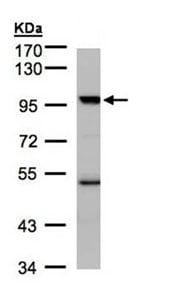 Western blot - KAT2B / PCAF antibody (ab96510)