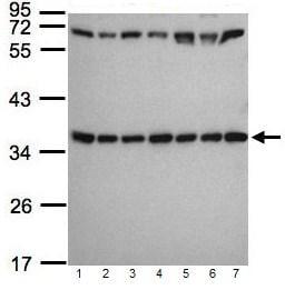 Western blot - RPS3A antibody (ab96534)