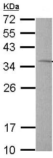 Western blot - TST antibody (ab96543)