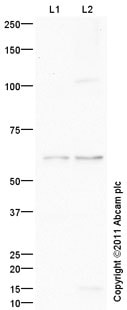 Western blot - Anti-Frizzled 5 antibody (ab96547)