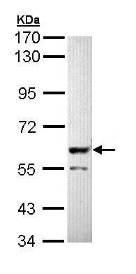 Western blot - PPP3CB antibody (ab96556)