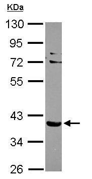 Western blot - SLC9A3R2 antibody (ab96562)