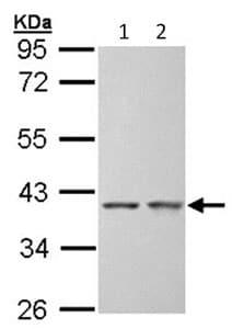 Western blot - SGTA antibody (ab96571)