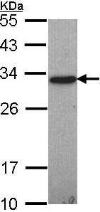 Western blot - glutathione S transferase Omega 1 antibody (ab96586)