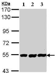 Western blot - Placental alkaline phosphatase (PLAP) antibody (ab96588)