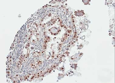 Immunohistochemistry (Formalin/PFA-fixed paraffin-embedded sections) - PARP3 antibody (ab96601)