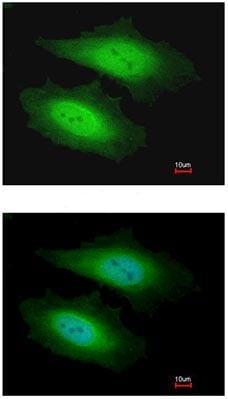 Immunocytochemistry/ Immunofluorescence - PSKH1 antibody (ab96602)