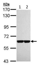 Western blot - PKLR antibody (ab96604)