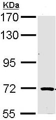 Western blot - TRIM32 antibody (ab96612)