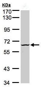 Western blot - DYRK3 antibody (ab96617)