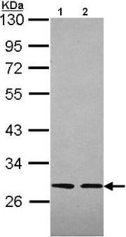 Western blot - Slap antibody (ab96620)