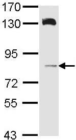 Western blot - HPS6 antibody (ab96656)