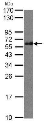 Western blot - CMG1 antibody (ab96660)