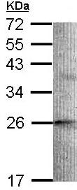Western blot - STMN2 antibody (ab96662)