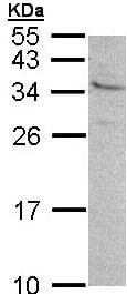 Western blot - GEM antibody (ab96663)