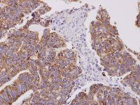 Immunohistochemistry (Formalin/PFA-fixed paraffin-embedded sections) - Cofilin 2 antibody (ab96678)