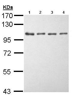 Western blot - EEF2K antibody (ab96685)