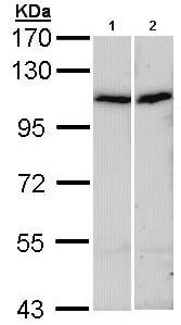 Western blot - alpha Actinin 4 antibody (ab96686)