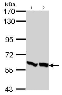 Western blot - PFKFB3 antibody (ab96699)