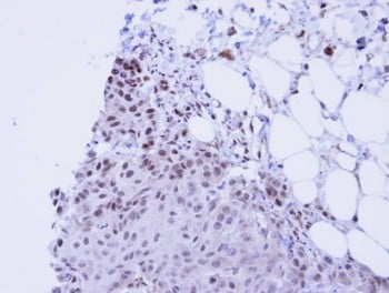 Immunohistochemistry (Formalin/PFA-fixed paraffin-embedded sections) - SSRP1 antibody (ab96704)