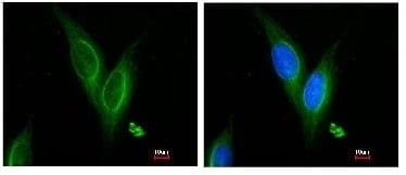 Immunocytochemistry/ Immunofluorescence - TUBA4A antibody (ab96743)