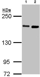 Western blot - DIAPH1 antibody (ab96784)