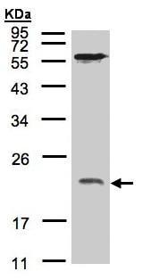 Western blot - ARF1 antibody (ab96789)