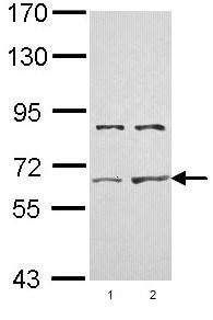 Western blot - Activin Receptor Type IIA antibody (ab96793)