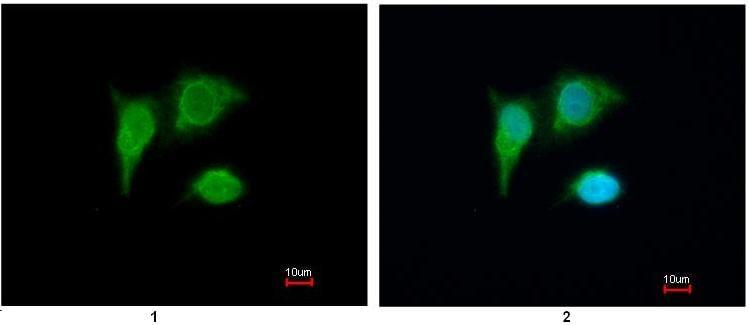 Immunocytochemistry/ Immunofluorescence - PIG3 antibody (ab96819)
