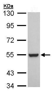 Western blot - Retinoid X Receptor beta antibody (ab96824)
