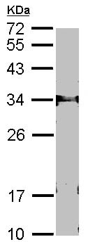 Western blot - FbxL12 antibody (ab96831)